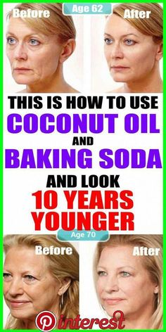 This is hoe to use COOCONUT OIL and Baking Soda
