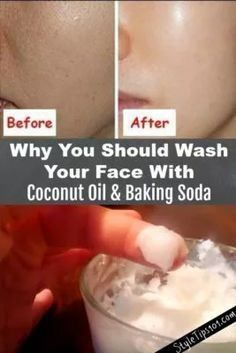 Why you should wash your face with COCONUT Oil & Baking Soda